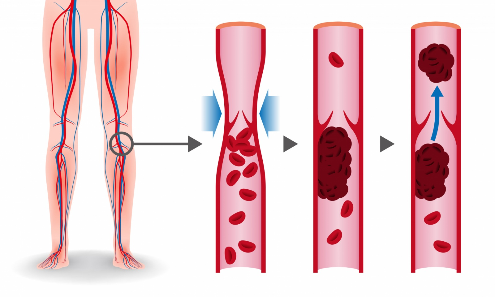 Aké dôsledky môže mať trombóza?