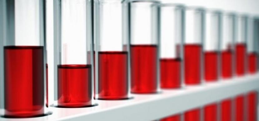 Strava podle krevní skupiny - skupina A