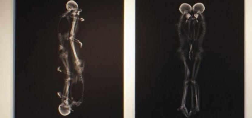 Portréty párů zachycené rentgenem. Romantické nebo strašidelné?