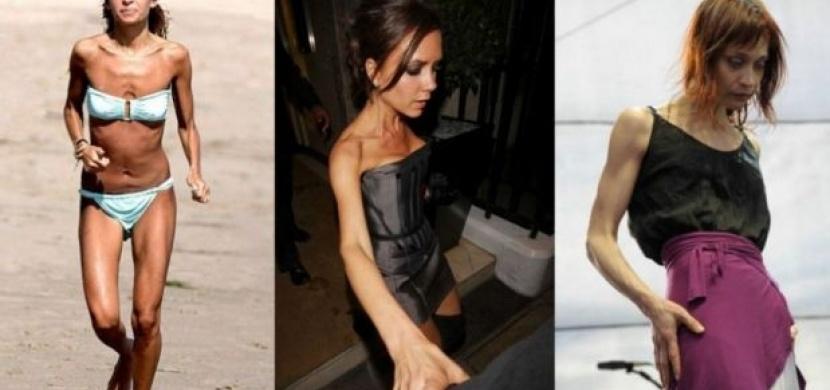 Jsou bohaté, krásné a...nemocné: kdo ze slavných krásek bojoval s anorexií?