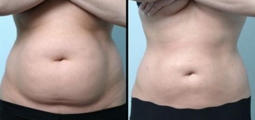 Díky tomuto triku spálíte tuk na břichu a kila půjdou dolů jako nikdy předtím!