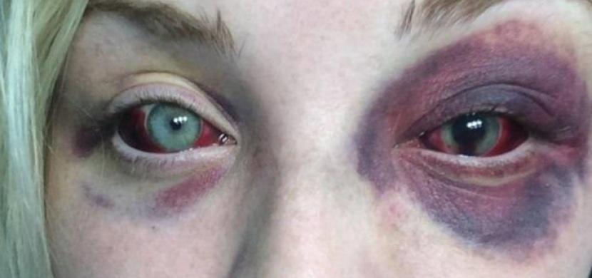 Její přítel ji brutálně napadl. Když se to dozvěděl její otec, přesně věděl, jak má zakročit...