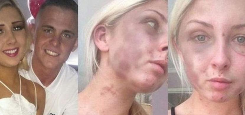 Její přítel ji napadl a brutálně zmlátil. Nikdo nečekal, co ještě po tom všem přijde!