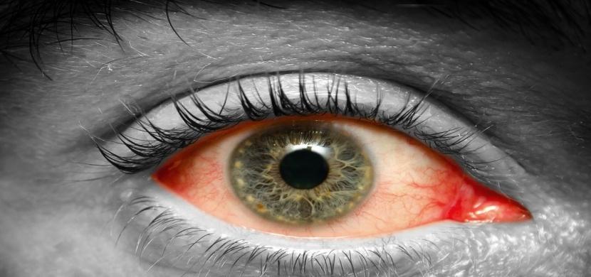 """Co oči prozradí o vašem zdraví? Nepodceňujte jejich """"řeč"""""""
