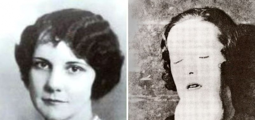 Tato žena zemřela podle lékařů na syfilis. O několik let později se však ukázalo, že za to mohla její práce...