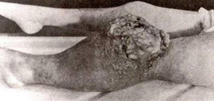 Tato žena zemřela podle lékařů na syfilis. Když ale potom otevřeli rakev, zjistili děsivou pravdu!