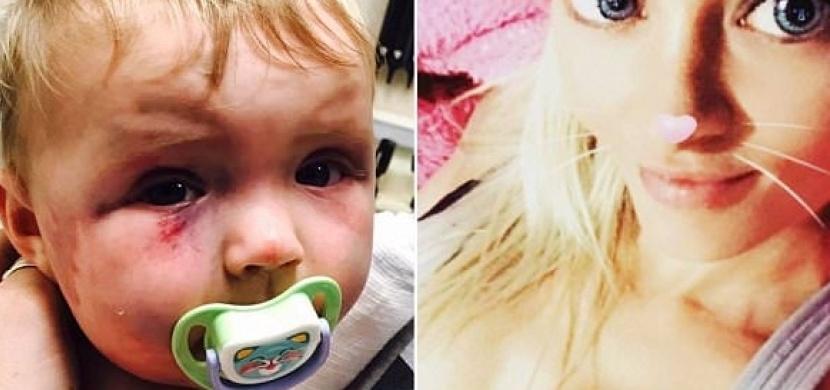 Žena surově zbila svou osmiměsíční dcerku. To, co se stalo potom, rozhodí snad úplně každého...