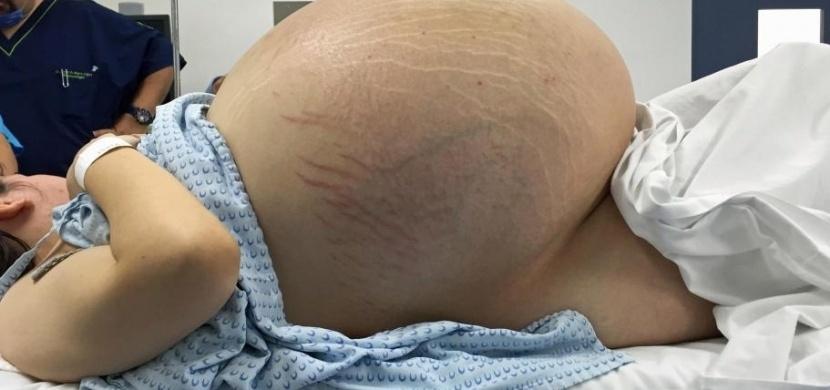Může to vypadat jako těhotenské bříško. Když ale ženě udělali rentgen, nezmohli se ani na slovo...