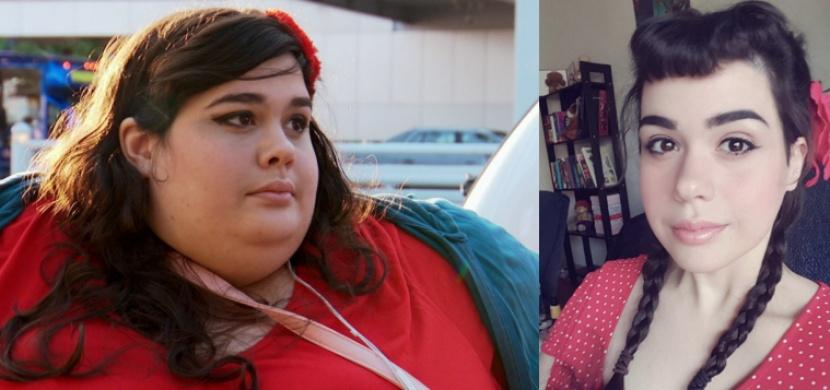 Tato žena vážila neuvěřitelných 300 kg. Přečtěte si její příběh