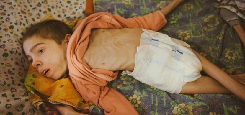 Novinář v sirotčinci zachytil hrozivé fotografie. To, co se mu podařilo zjistit, šokovalo celý svět