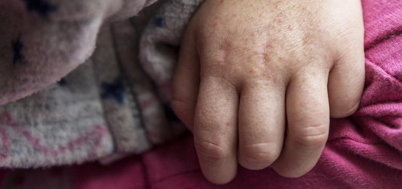 Vážné infekční onemocnění se vrací. Na tyto příznaky u svých dětí dávejte pozor