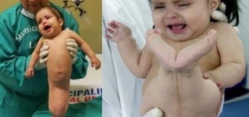 Tato holčička trpí syndromem mořské panny. Přesto se ale snaží žít normální život