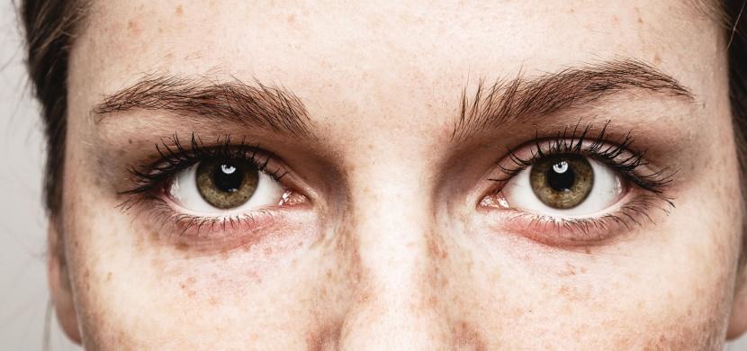 Souvisí barva očí s alkoholismem? Podle vědců ano