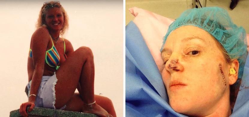 Opalování se zvrhlo v posedlost, která jí málem stála vše. Musela podstoupit už 86 operací