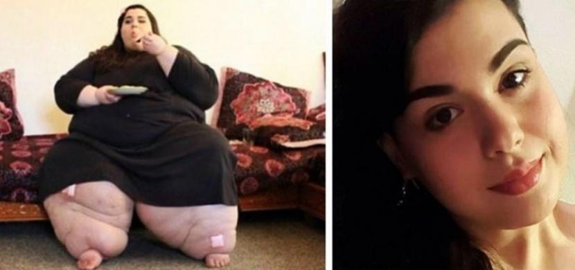 Žena, která vážila téměř 300 kilogramů, se rozhodla změnit svůj život. Podařilo se jí zhubnout 150 kilogramů a vypadá úžasně