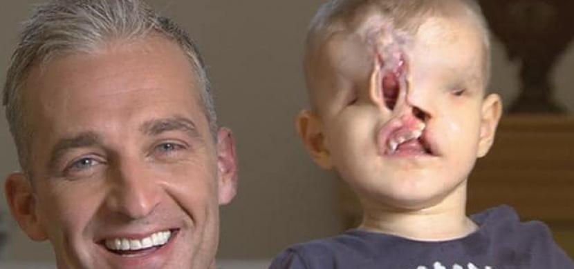 Chlapec neměl ústa, nos ani oči. Pak ale přišla nečekaná pomoc