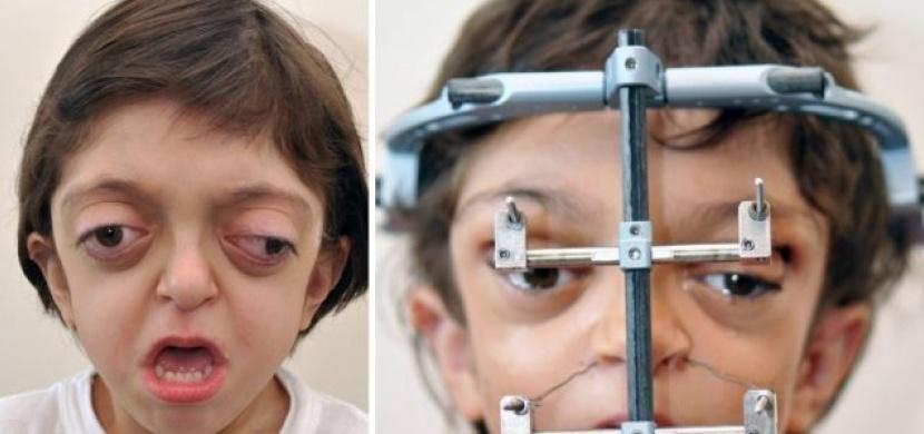 Narodil se s genetickým onemocněním, které mu způsobilo deformaci lebky