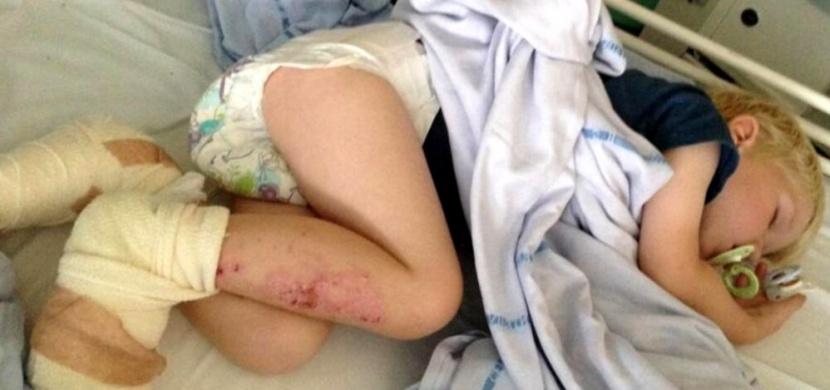 Rodinný výlet na pláž skončil tragédií. Její tříletý syn si v písku popálil nohy