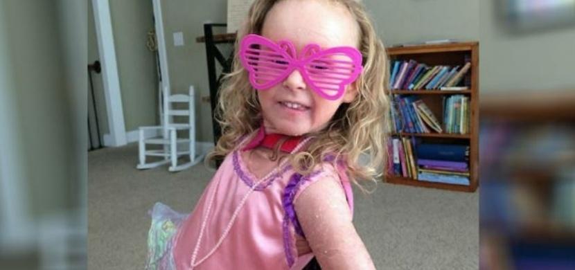Dívka s vzácným onemocněním kůže si z posměšků okolí nic nedělá. Snaží se o své nemoci informovat