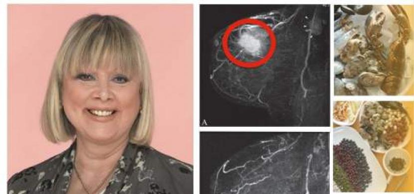 Žena, která měla zemřít, porazila rakovinu prsu jednoduchou dietou. Začala se stravovat jako Číňané