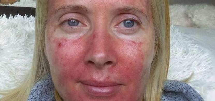 Žena si myslela, že má lupénku: Po sedmi letech zjistila, že trpí mnohem zákeřnější chorobou