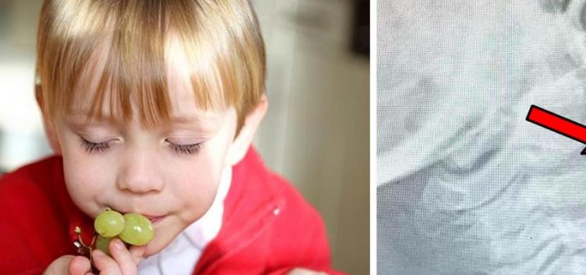 Matka sdílela rentgenový snímek svého syna: Pro děti je nebezpečná i kulička hroznového vína, upozorňuje