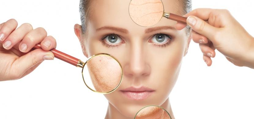 Rozsáhlé pigmentové skvrny v obličeji trápí spoustu žen: Tuto kožní nedokonalost odstraníte díky citronu a petrželi