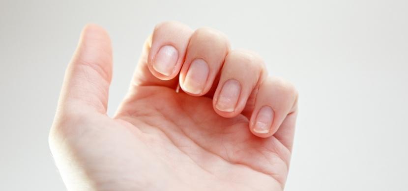 Bílé skvrny, zažloutnutí nebo třepení: Tyto varovné signály nehtů upozorňují, že máte zdravotní problém