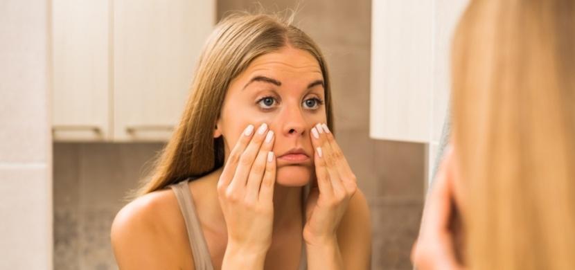 Váčky pod očima nemaskujte pouze kosmetikou: Řešte příčiny jejich vzniku