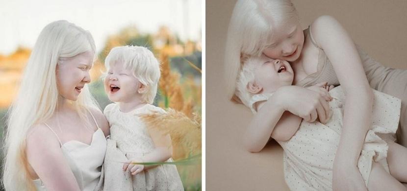 Slavné albínské sestry z Kazachstánu: Asel a Kamila Kalaganovy dobyly Instagram
