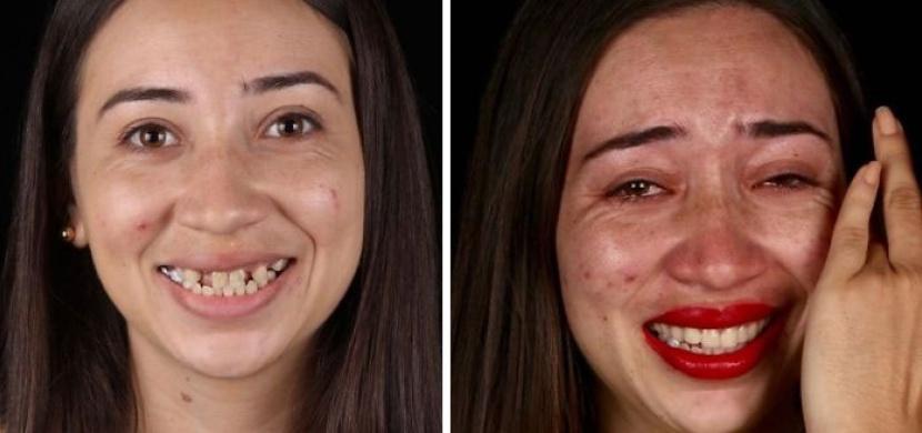 Brazilský zubař vrací zadarmo chudým lidem úsměv. Díky dokonalému chrupu se jim navrací i ztracené sebevědomí