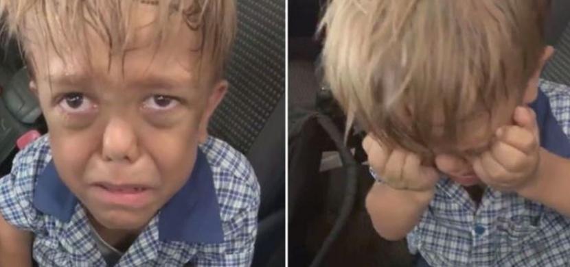 Chlapec Quaden s poruchou vzrůstu dojal v srdceryvném videu celý svět. Jeho oficiální účty na sociálních sítích i spolu s videem však záhadně zmizely