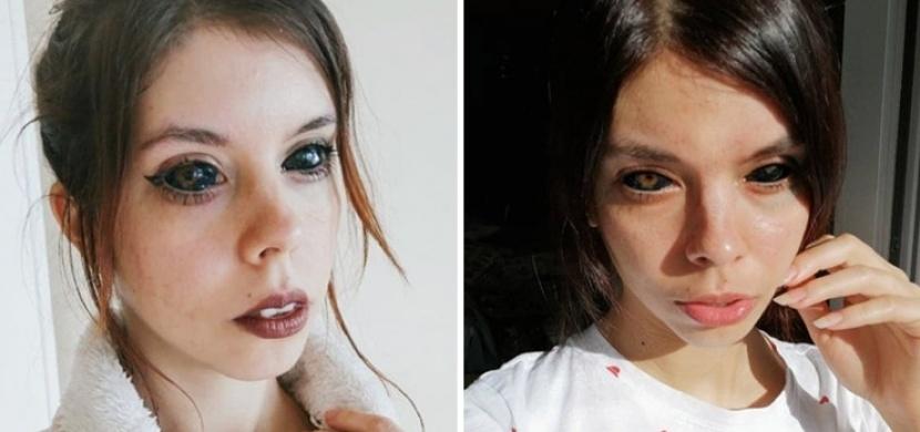 Polka Aleksandra Sadowská oslepla po tetování očí. Tatér, který zákrok provedl, vinu popírá