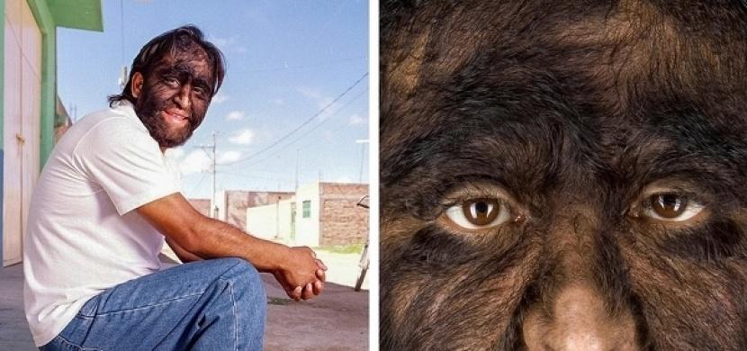 Poznejte nejpodivnější nemoci světa: Syndrom vlkodlaka, progérie i kamenná tvář