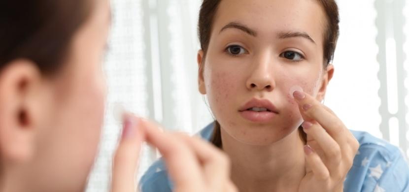Náplasti na pupínky vás zbaví akné přes jedinou noc. Jak fungují?