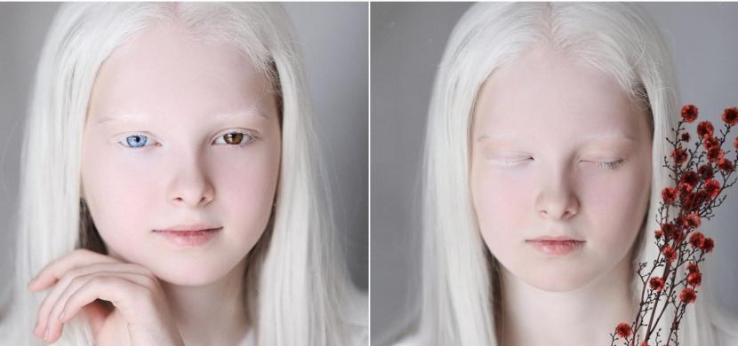 Čečenská dívka Amina Ependieva má dvě vzácné genetické vady. Díky albinismu a odlišné barvě očí však vypadá jako éterická víla