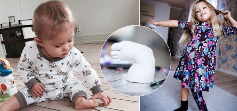 Švédská holčička s fibrózní hemimélií přišla o nohu v batolecím věku. Amputace jí však obrátila život k lepšímu