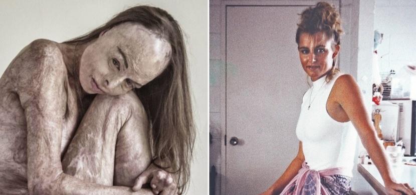 Bývalá australská miss Carol Mayer utrpěla popáleniny na 85 procentech těla. Po 20 letech nafotila sérii fotografií