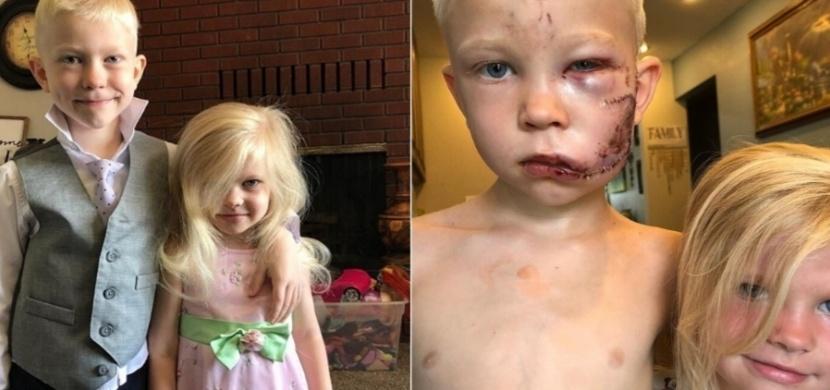 Šestiletý Bridger Walker zachránil svou mladší sestru před rozzuřeným psem. Nyní se stal nejmladším držitelem boxerského pásu WBC