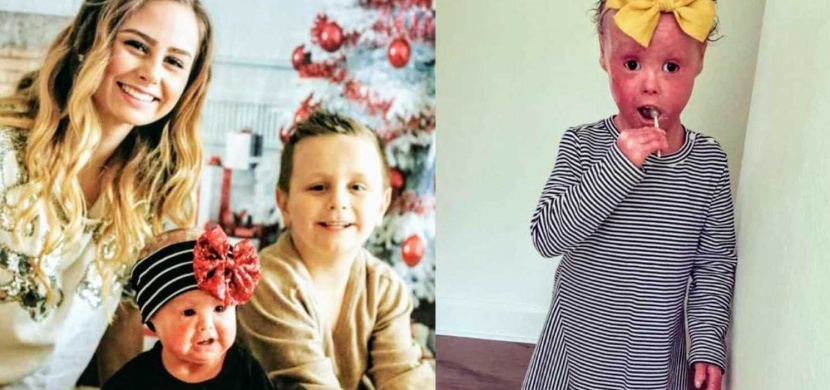 Čtyřletá Harper Foy se narodila s harlekýnovou ichtyózou. V rámci osvěty svého onemocnění se stala dětskou modelkou