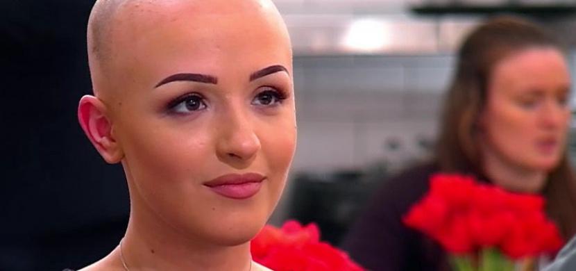 Žena s alopecií si během prvního rande sundala paruku. Video ukazuje, jak reagoval její partner