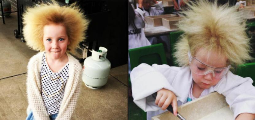 Desetiletá holčička má nezkrotitelné vlasy. Tento vzácný syndrom měl i Albert Einstein