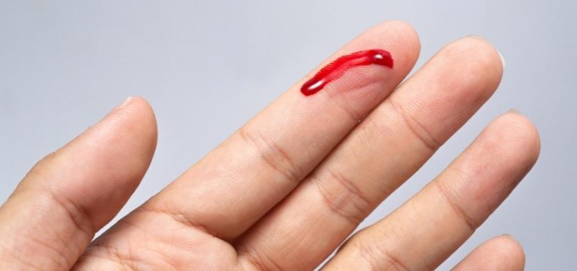 Máte krevní skupinu s negativním Rh faktorem? Zjistěte, jak Rh minus formuje vaši osobnost