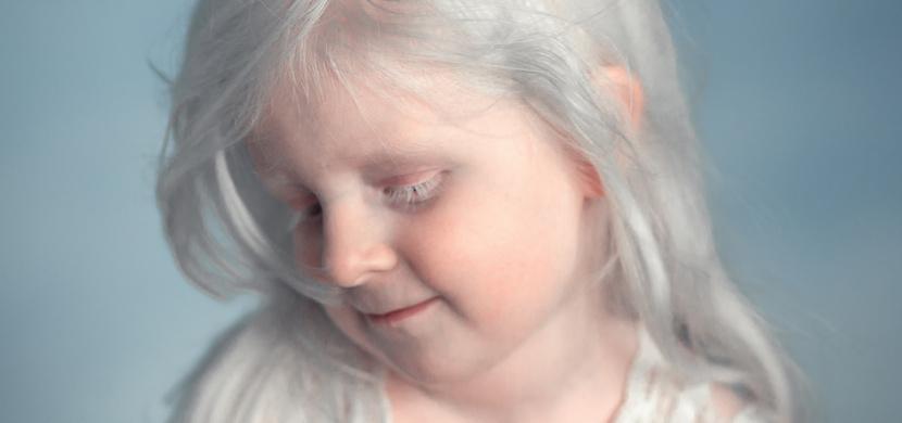 O albínskou holčičku z ruské Sibiře se přetahují modelingové agentury. Svou krásou ohromí i vás