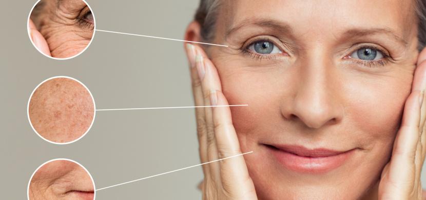 Suchá, citlivá pokožka i hormonální akné aneb 5 způsobů, jak přechod změní vaši kůži